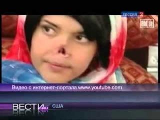 Афганской девушке муж-талиб отрезал нос