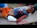 Ребёнок пострадал, после обстрела кассетными боеприпасами саудовской авиации в округе Баким, Саада.