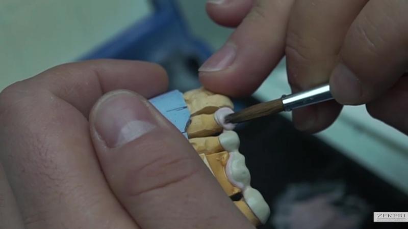 Зуботехническая лаборатория GARANT SMILE