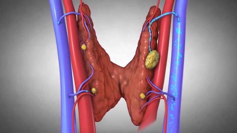 Щитовидная железа и 18 признаков, что она больна