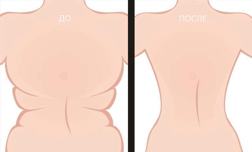 Как согнать жир со спины женщине — полное практическое руководство.