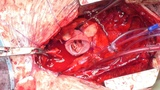 MMCTS - The David procedure for surgical management of neo-aortic root dilatation