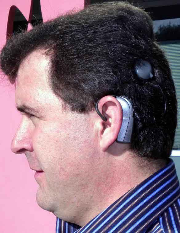 Кохлеарные имплантаты предназначены для пациентов с тяжелыми уровнями слуха.