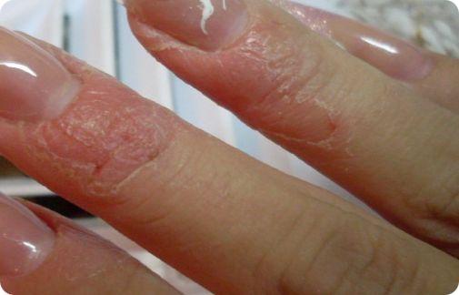 Аллергия на гель лак, Аллергия на гель лак фото, Аллергия на гель лак что делать