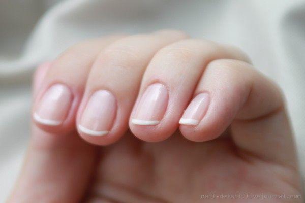 Почему ногти болеют и плохо растут