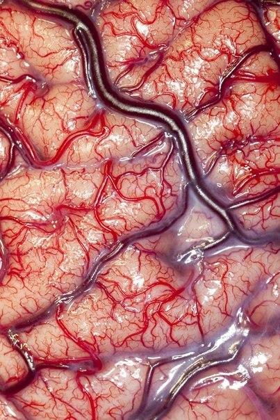 Анатомия: Поверхность мозга эпилептка