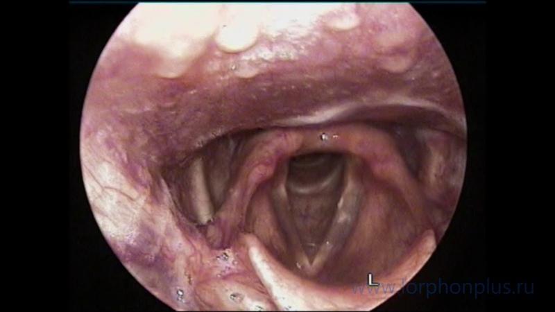 Операция хондроларингопластика (удаление кадыка) и феминизация голоса