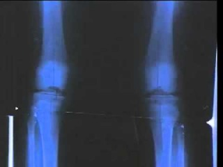Femoral Lengthening Over Nail