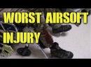 DesertFox Airsoft: Worst Airsoft Injury (OPLCMSS: Red Storm West 2014)