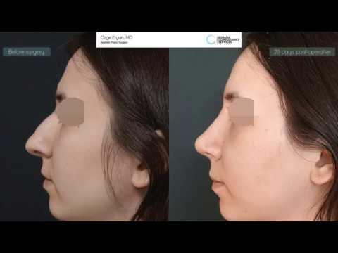 Rhinoplasty cast removal - Ozge Ergun, MD
