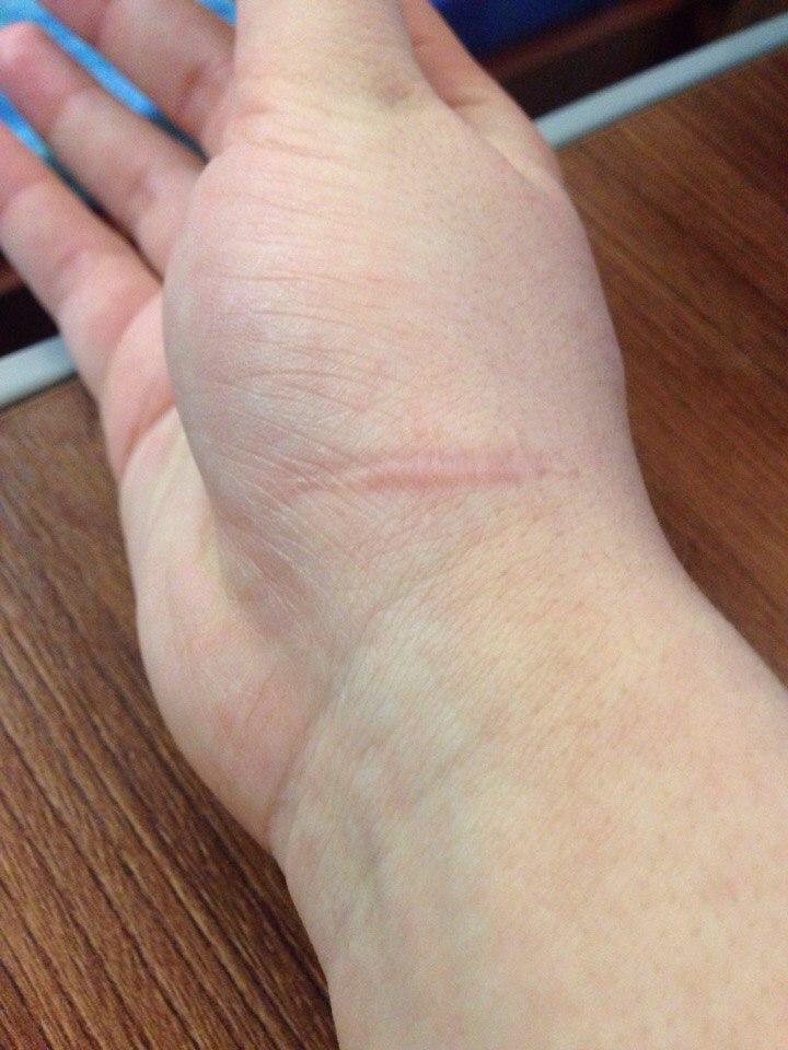 Шпоры на пятках лечение Пяточная шпора Как лечить шпоры