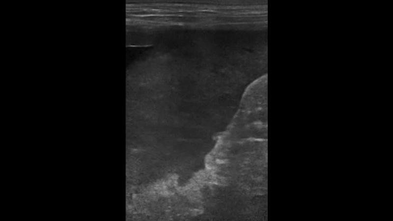 изменение селезенки на фоне разрыва жп при мукоцеле