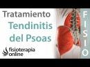 PSOITIS O TENDINITIS DEL PSOAS Tratamiento con ejercicios automasajes y estiramientos
