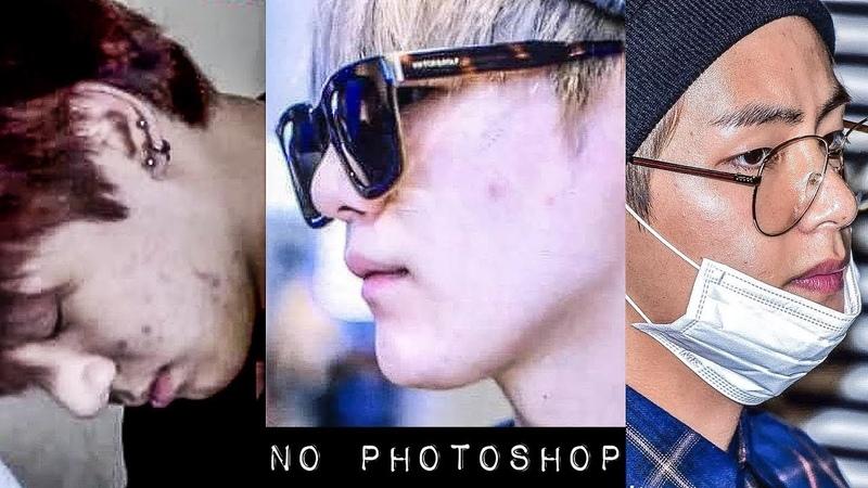 BTS WITHOUT PHOTOSHOP (acne, texture, spots...)