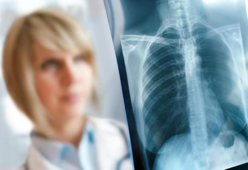 рентген грудной клетки можно использовать для диагностики аспирационной пневмонии у пациентов