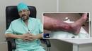 Варикозная болезнь нижних конечностей - симптомы, диагностика, лечение.