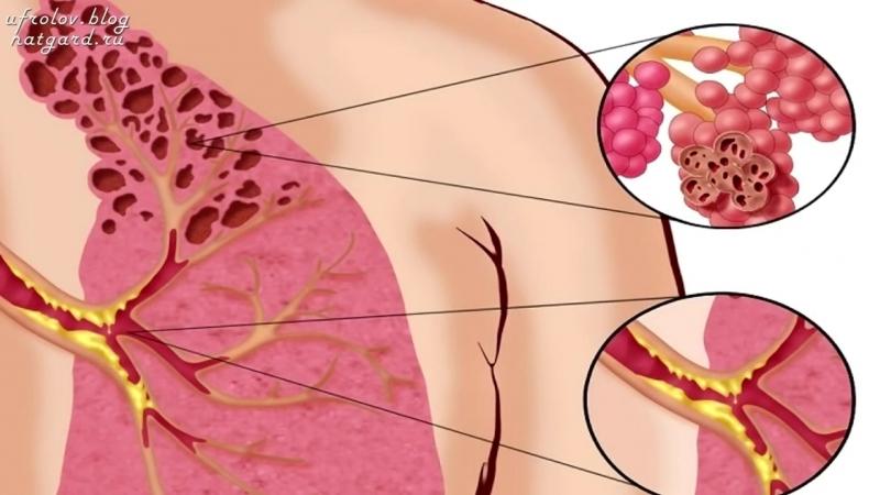 Болезни органов Дыхательной Системы. Причины ринита, синусита, кашеля, насморка, бронхита и пр.
