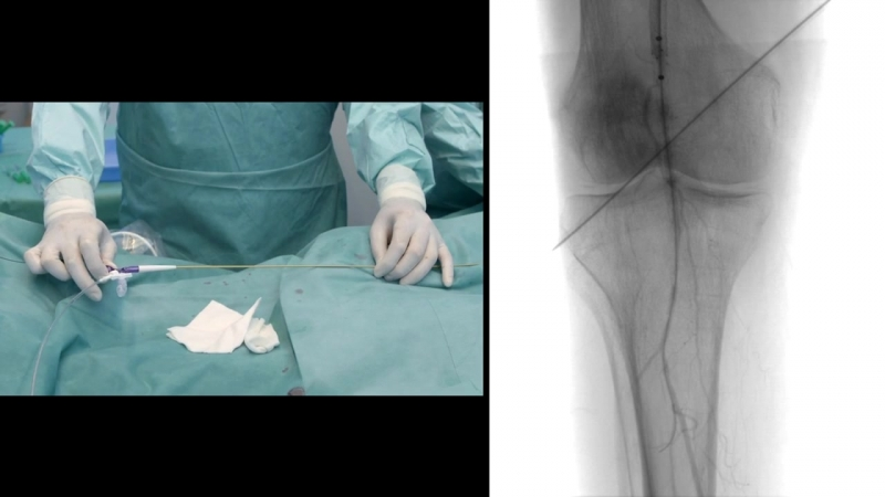 Катетерная тромбоэкстракция