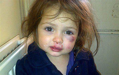 С*ка!- сказала пьяная мама пятилетней дочери за то, что она нарисовала ее помадой на листочке сердечко.После чего мать жестоко избила девочку, и обматерила.Малышка упала.Когда мать отрезвела, попросила прощения, но...
