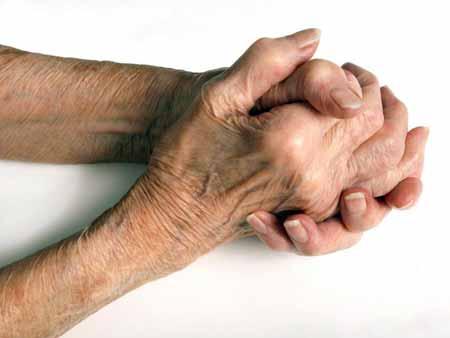 Капсаицин часто используется в кремах для временного облегчения боли при артрите.