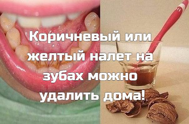 Коричневый или желтый налет на зубах можно удалить дома! Зубной камень  распространенная проблема, и современная стоматология предлагает множество способов его устранения. Но существует метод, который работает не хуже, при этом экономя ваши средства!