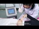 Q-Switched nd yag Laser machine with imported Korean laser guide!