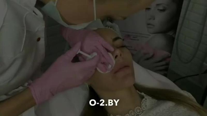 Коррекция губ препаратом гиалуроновой кислоты Aliaxin FL