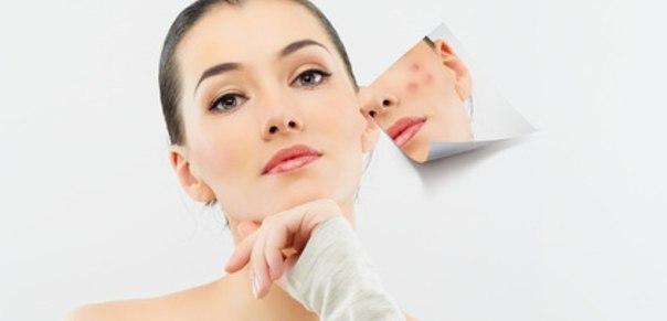 как можно очистить лицо от черных точек в домашних условиях