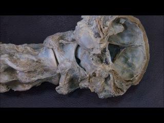височно-челюстной, затылочно-атлантный, атланто-осевой суставы