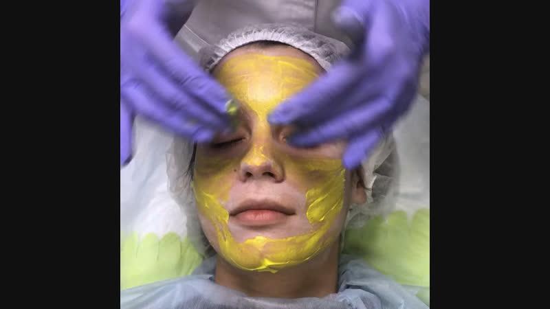 Желтый ретиноевый пилинг