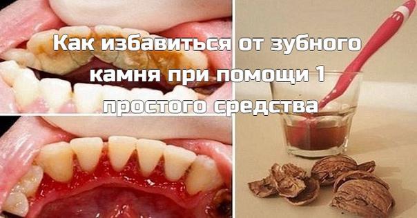 Коричневый или желтый налет на зубах можно удалить дома! Зубной камень  распространенная проблема, и современная стоматология предлагает множество способов его устранения. Но существует метод, который работает не хуже, при этом экономя твои средства!