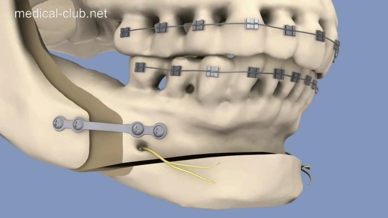 Билатеральная сагиттальная сплит остеотомия