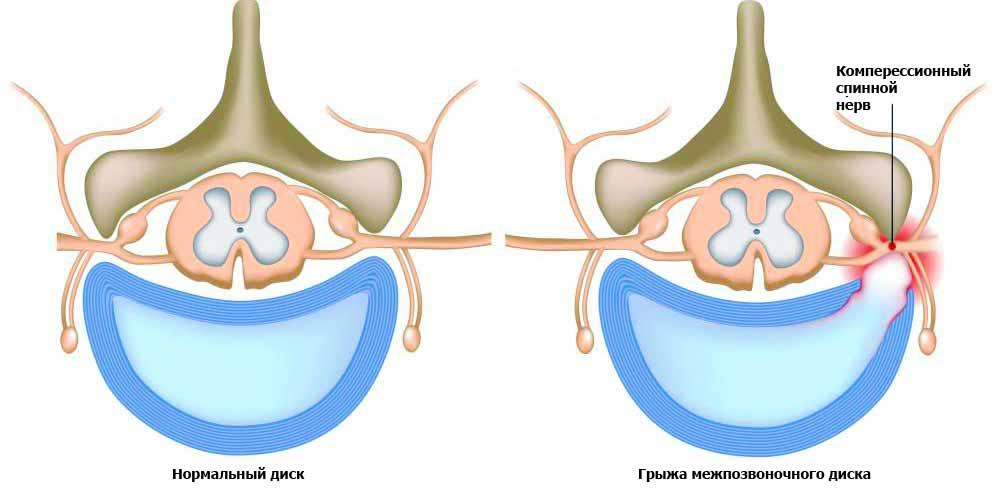Травма является частой причиной болей в спине