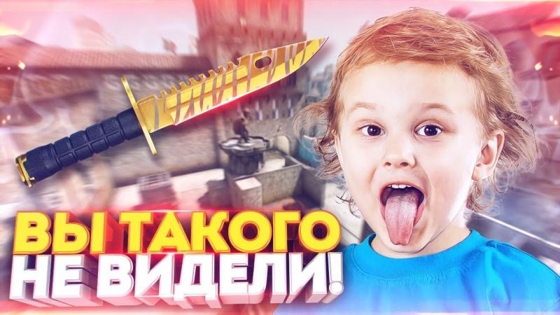 Dumbazz ВИДЕЛИ РИСКНУЛ И ВЫБИЛ НОЖ ЗА 10000 РУБЛЕЙ В КС ГО ОТКРЫТИЕ КЕЙСОВ В CS GO