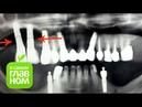 О самом главном Имплантация зубов Шаргородский Г М