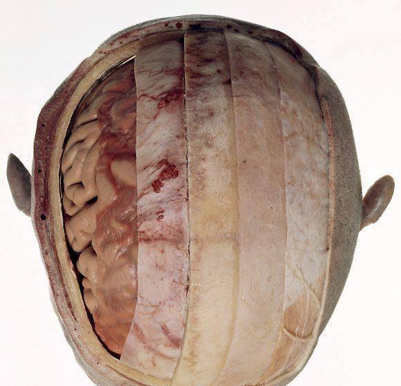 Оболочка мозговая мягкая фото