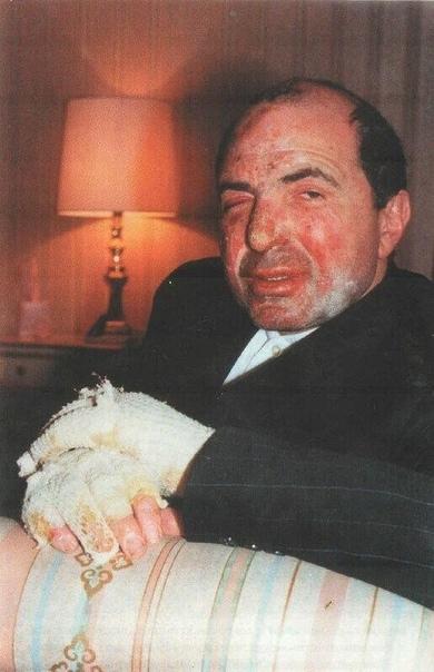 Фото Бориса Березовского после покушения, 1994 год.