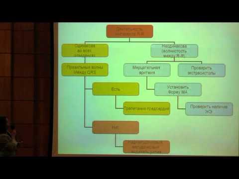 Алгоритм действий при выявлении различных видов аритмий, связанных с применением общих анестетиков