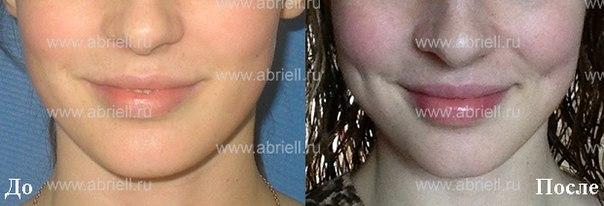 димпл-эктомия до и после фото