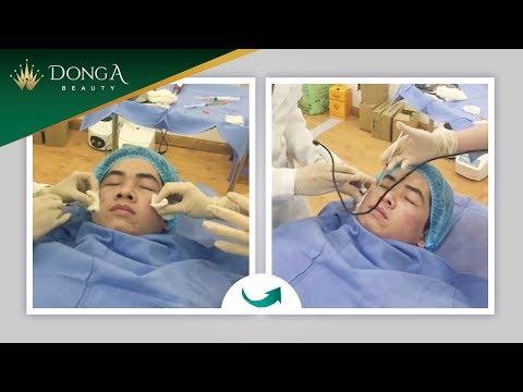 Cận cảnh điều trị sẹo rỗ, lõm bằng công nghệ Bio Plus