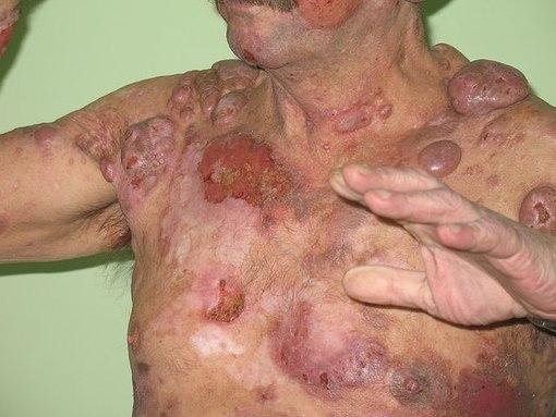 история болезни лимфома: