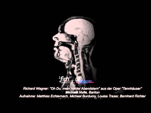 Look inside the head of a opera singer as he performs Wagner Live As He Performs