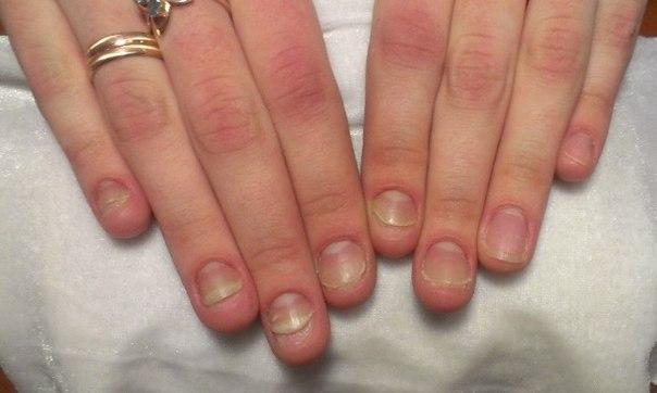 Сгрызенные ногти фото