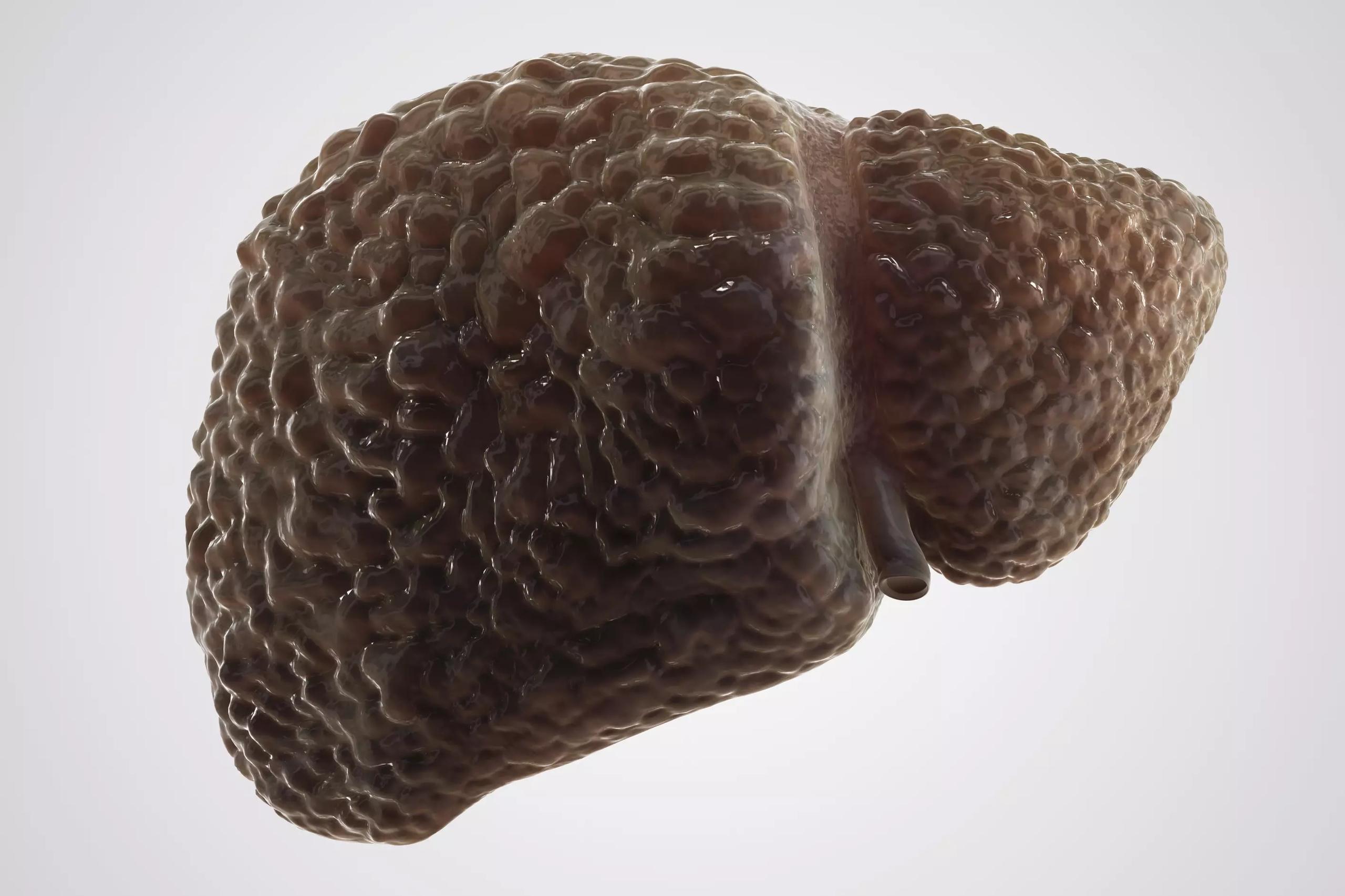 Гепатит С - это РНК-вирус, который вызывает гепатит или воспаление печени