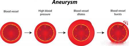 Ангиография может быть использована для выявления аневризм в головном мозге, а также заболеваний почечных артерий в почках