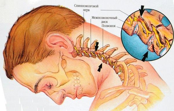 Упражнений для лечения остеохондроза шейного отдела