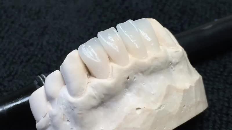 WAX-UP. Моделировка зубов, нижний фронт