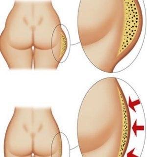 как убрать жир внутренней части бедра