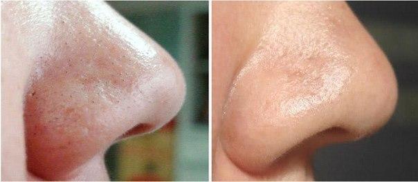 как очистить черные точки на лице