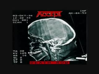 Accept - writing on the wall